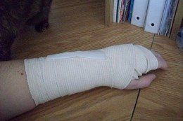 bandaged-hand-260x173.jpg