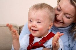 down-syndrome-260x172.jpg