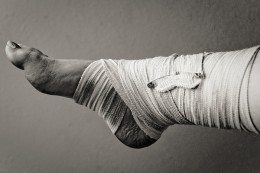 twisted-ankle-260x173.jpg